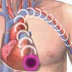 Acute Coronary Syndrome - Pathophysiology, Symptoms & Treatment