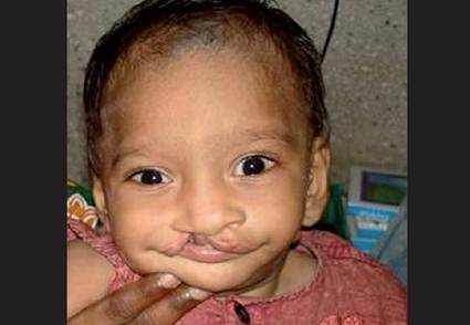 Goldenhar Syndrome cleft lip photos
