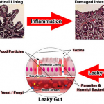 Leaky Gut Syndrome Images