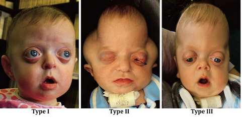 Pfeiffer Syndrome images