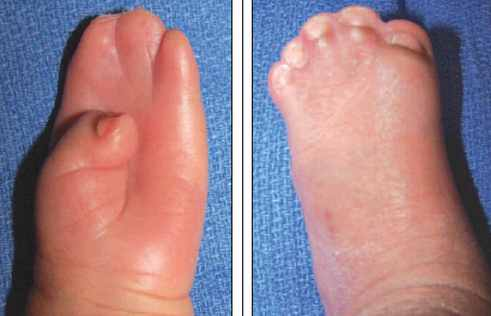 Pfeiffer Syndrome pictures