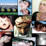 Gulf War Syndrome pictures