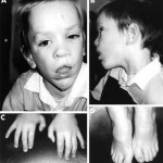 Sotos Syndrome photos