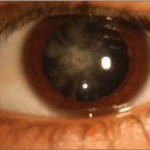 Alport Syndrome pictures