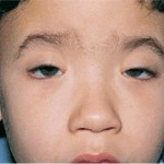 Kearns-Sayre syndrome picture