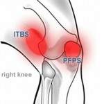 Pictures of Patellofemoral Pain Syndrome