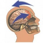 Post Concussion Syndrome - Symptoms, Treatment, Effects, Prognosis