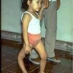 Post Polio Syndrome Pictures