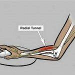 Radial Tunnel Syndrome - Symptoms, Treatment, Surgery, Exercises