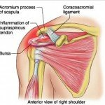 Rotator Cuff Syndrome - Symptoms, Exercises, Treatment