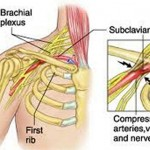 Thoracic Outlet Syndrome - Symptoms, Exercises, Test, Treatment