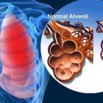 Acute Respiratory Distress Syndrome - Treatment, Symptoms, Causes