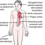 Marfan Syndrome - Pictures, What is?, Symptoms, Treatment, Life Expectancy