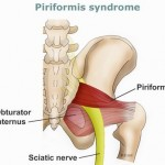 Piriformis Syndrome -  Stretches (Exercises), Treatment, Symptoms, Causes, Diagnosis