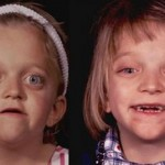 crouzon syndrome images