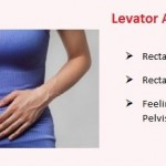 Levator Ani Syndrome - Treatment, Symptoms, Causes