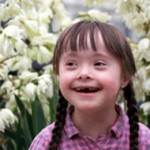 mosaic down syndrome image