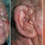 sezary syndrome picture