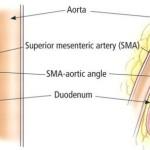 superior mesentric artery syndrome image