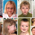 velocardiofacial syndrome phenotypes