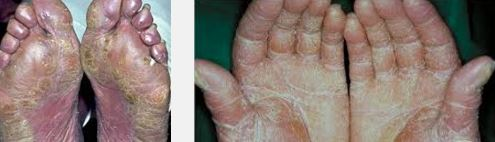 sezary syndrome hands and legs