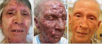 sezary syndrome image