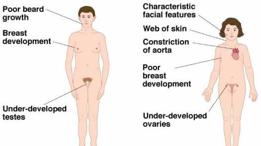 Androgen Insensitivity Syndrome Hormonal Management & Case Studies