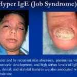 Hyper IgE Syndrome symptoms