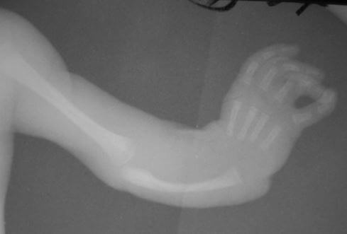 Holt Oram Syndrome X ray