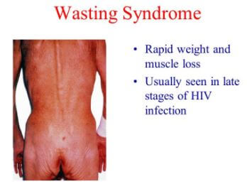Wasting Syndrome picture